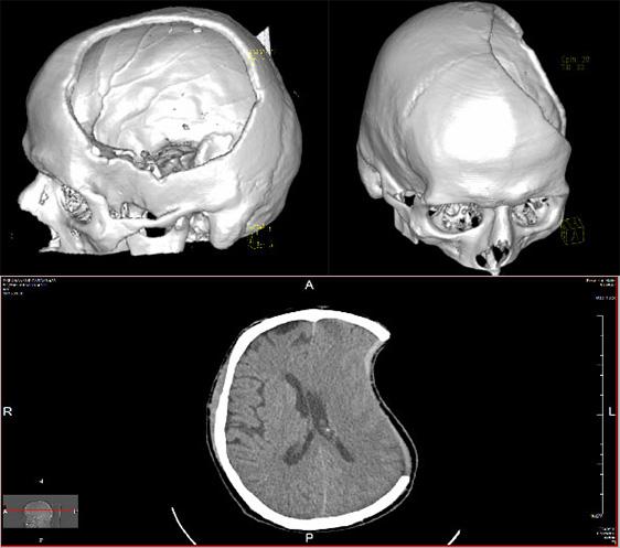 czaszka-litwa-2