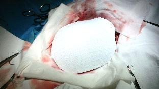 operacja-litwa-9